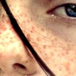 Sindromul X fragil