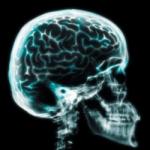 radiografia craniana