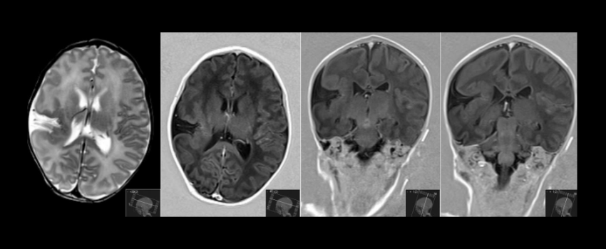 Schizencefalia