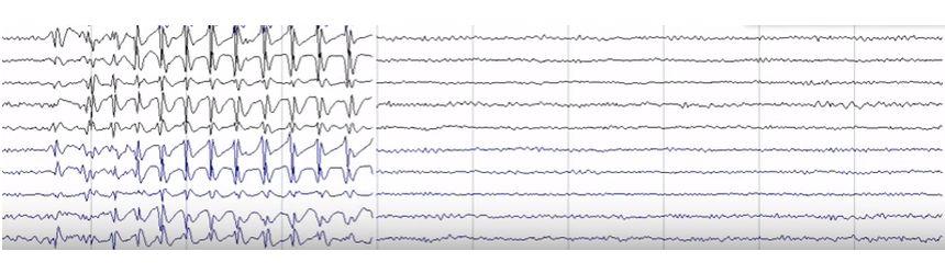 epilepsii / epilepsie cu absente mioclonice