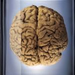 tomografia cerebrala