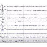 Epilepsia cu absente mioclonice